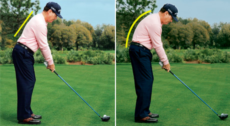 Watson posture  Is your posture affecting your Game? Watson posture